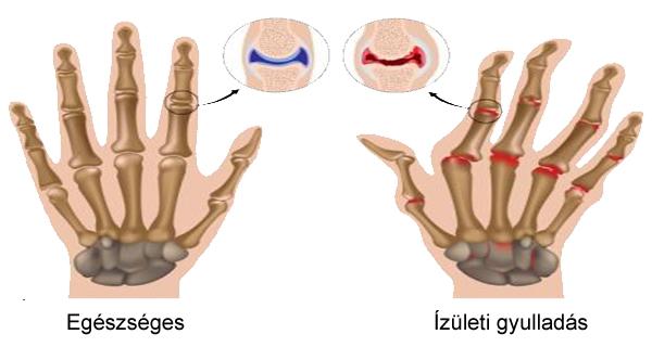 főnix ízületi kezelés gyengeség izzadás izületi fájdalom