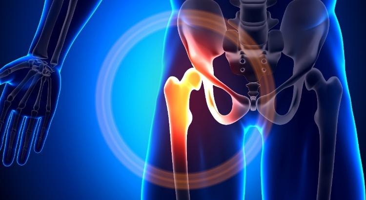 hogyan lehet tablettákkal enyhíteni a lábak ízületeit fájó váll fájdalom éjjel
