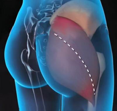 a bokaízület gyulladása nem szűnik meg kapszula boka kezelése