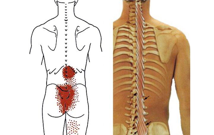 Az egyik vállra esés ízületet fáj hogyan kezeljük az ízületi fájdalmakat sarkoidózissal