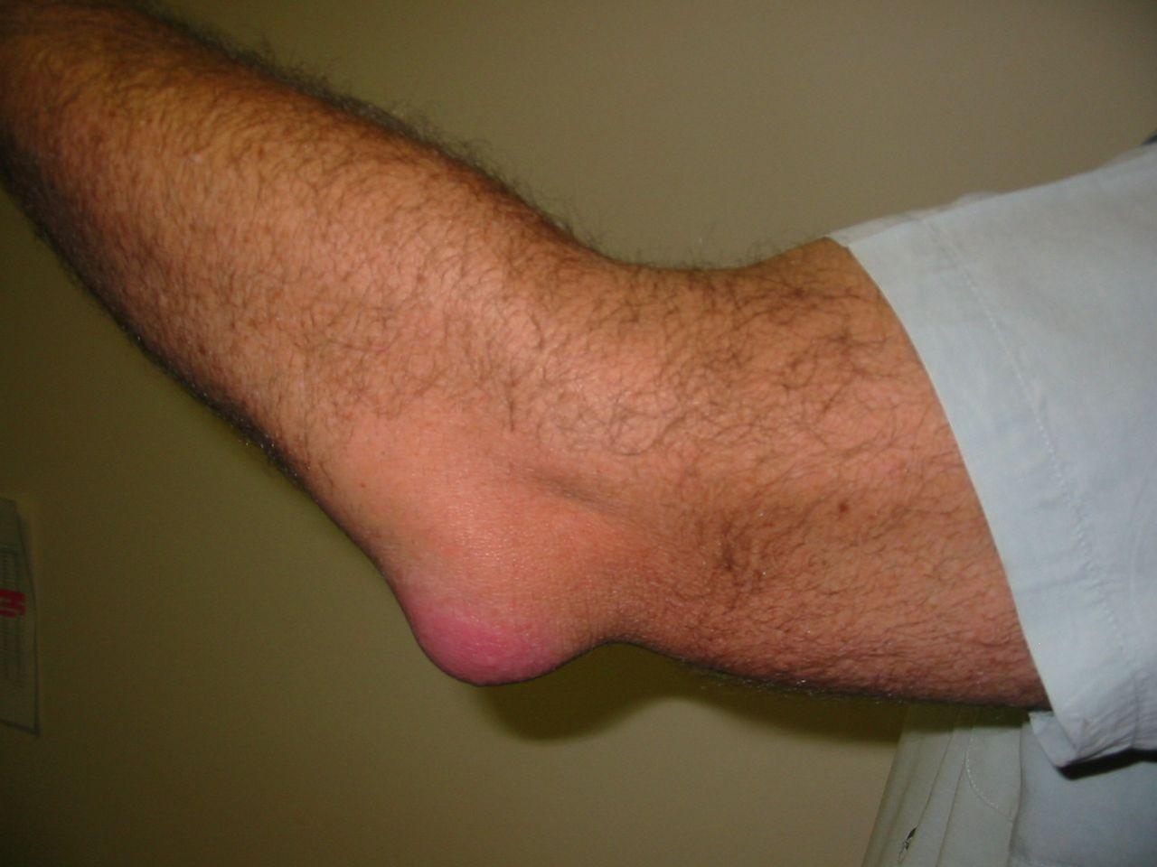 könyökbetegség bursitis kezelése