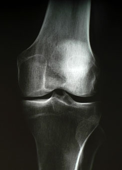 térd hidegvíz kezelés artrózisa kenőcsök és krémek nyaki osteochondrozishoz