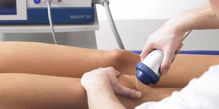 artrózis blokád kezelés