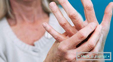 térd sérülés ízületi kezelés