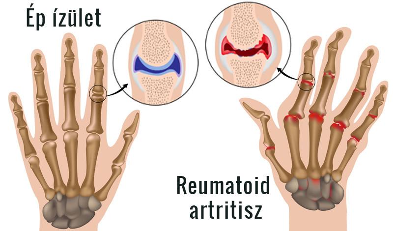 kézízületi betegségek okai artrózis kezelési kezelési rend