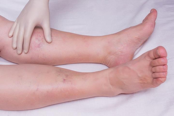 ízületek és a lábak talpa fáj