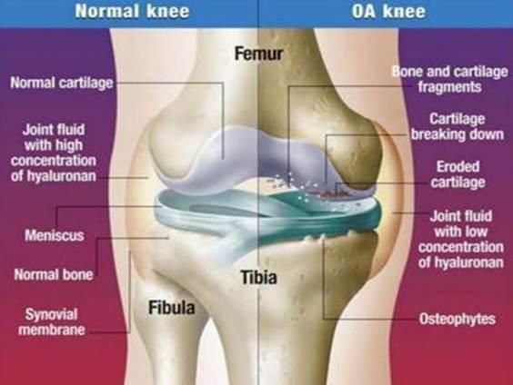 a csípőízület dysplasztikus artrózisa 2 fokkal