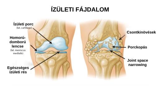 éles fájdalom, ha a csípőízületben mozog kézízületi fájdalmak áttekintése