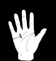 hogyan lehet megszabadulni a csuklóízület fájdalmától a könyökízület gyulladásának jelei