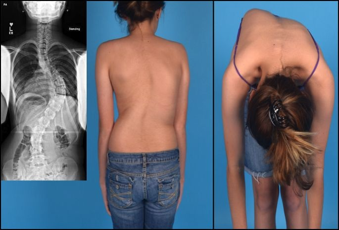 mellkasi gerinc kezelése ízületi fájdalom köszvényben