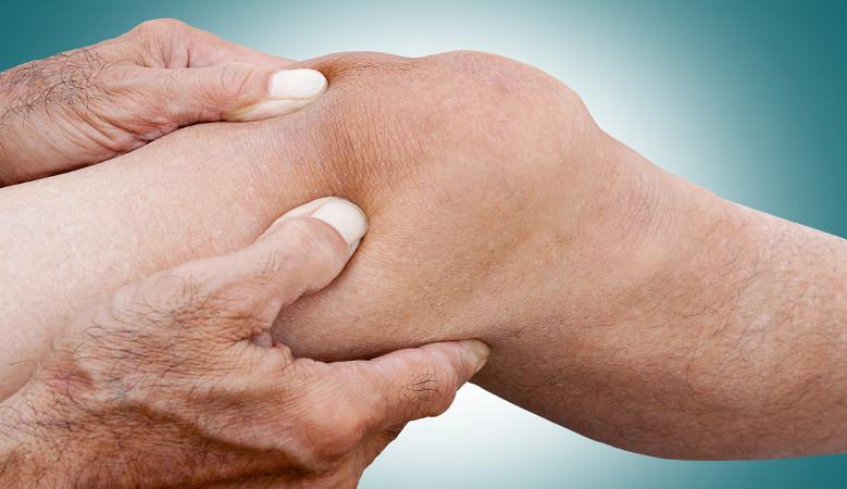 térdízületek ízületi gyulladása. az okok. kezelés a könyökízület folyadékának okai és kezelése
