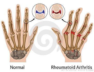 ujjak ízületeinek gyulladásainak kezelése térdízületi kezelési rendszer