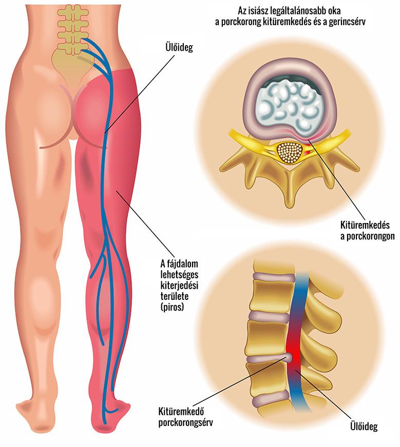 Köszvény tünetei és kezelése