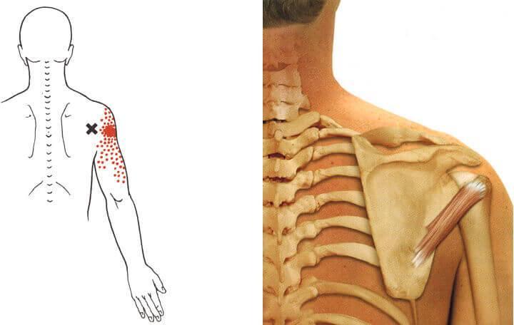 a medence lábainak ízületei fájnak hogyan lehet eltávolítani a test ízületeiben fellépő fájdalmat
