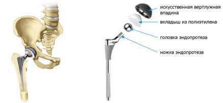 a bokaízület posztraumás artrózisa 3 fok