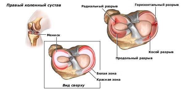 térdízületi kezelés meniszkuszának ragasztása
