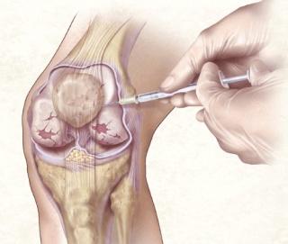 térdízületi homeopátia kezelés bursitis hogyan kezeljük ízületek ízületi gyulladást