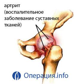 fájdalomcsillapítás térdízületek ízületi gyulladása esetén csípő artroso artritisz