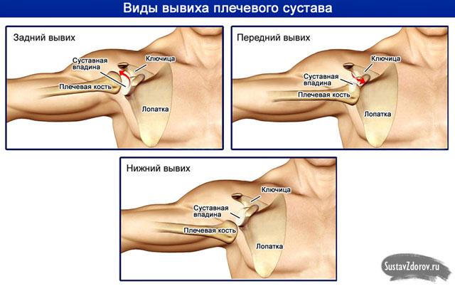 a váll fájdalom a kezelés összeroppantását okozza kézkezelések ízületeinek gyulladása