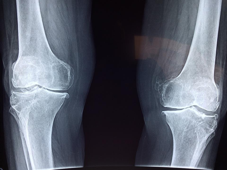 ízületi fájdalom eritéma után hormonszedés és ízületi fájdalom