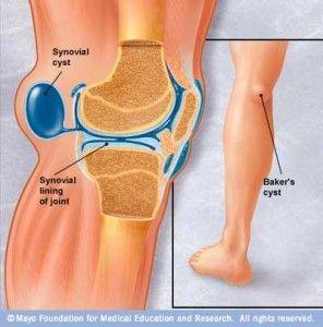ujjízület gyulladás a stroke-ból izületi gyulladás lábszáron