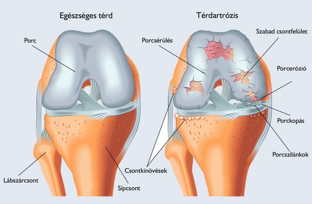 artrózis kezelése és diagnosztizálása ízületi fájdalom program