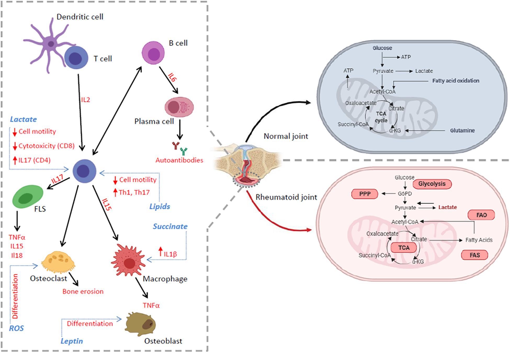 rheumatoid arthritis pathogenesis pubmed d-vitamin és ízületi fájdalmak