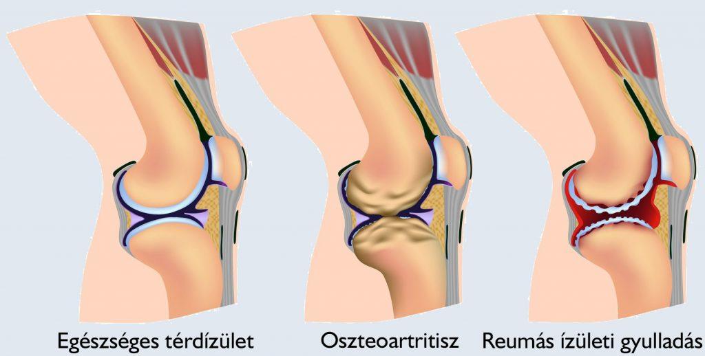 ízületi fájdalom hasi fájdalommal kenőcs ég az osteochondrozistól