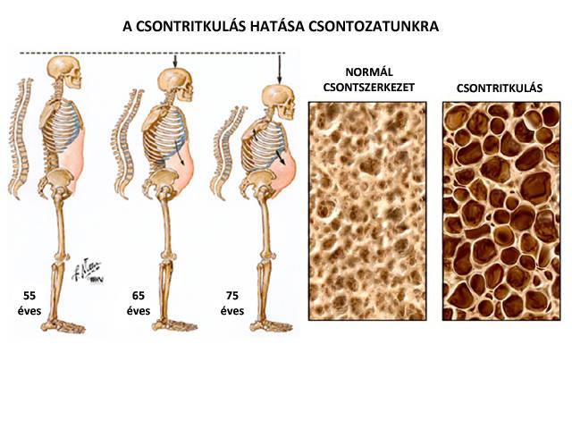 modern módszerek a térd osteoarthritisének kezelésére fájdalom a lábujjak ízületében járás közben