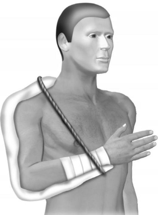 a nyaki gerinc nem átlátszó csontozatának kezelése