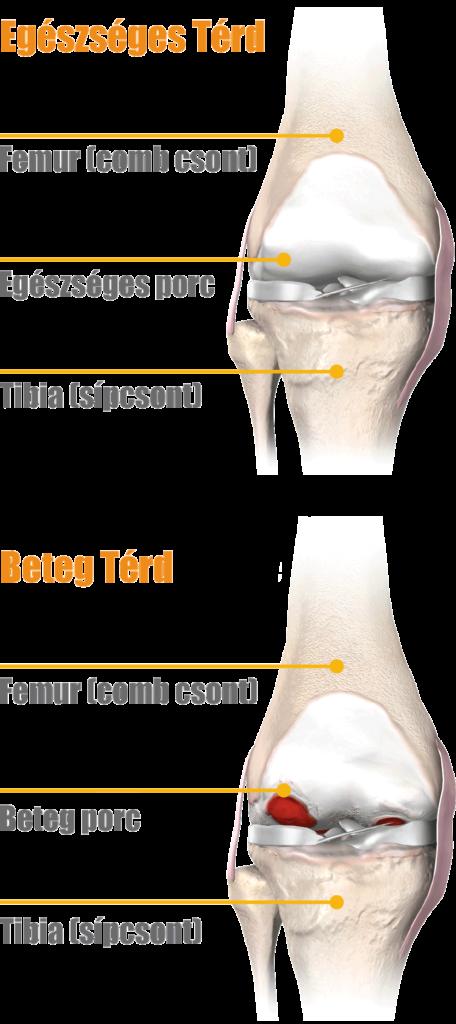 térd hidegvíz kezelés artrózisa izuleti fajdalomra etkezesi zselatin