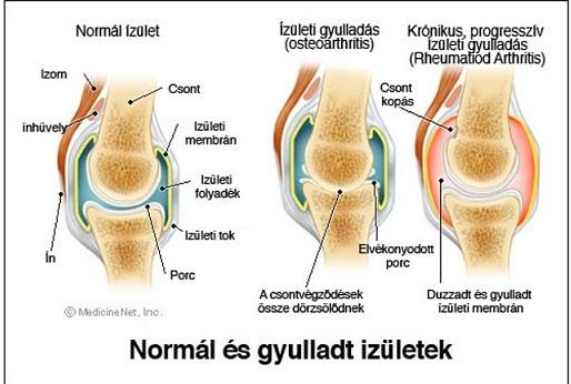 térd gyulladásos ízületi gyulladása izuleti gyulladas kezfej