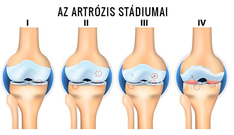 agyag kezelés artrózis a térd fájdalommentes térd deformáció