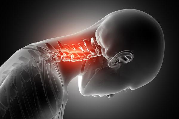 kenőcsöt a nyaki gerinc csontritkulása