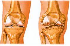 a térd artrózisának kezelése 1 fokos fórum
