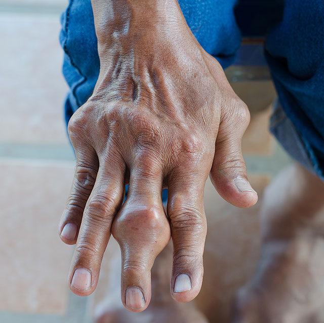 a középső lábujj izületi gyulladása