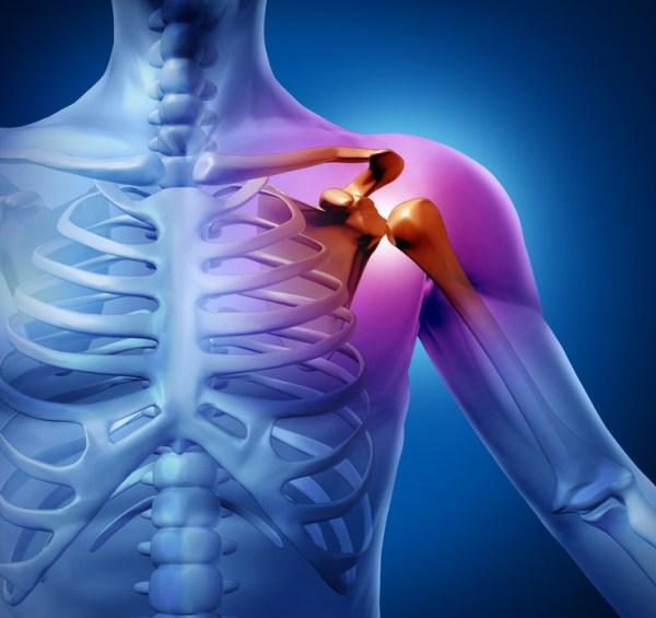 ízületi fájdalom troxevasin glükózamin és kondroitin hatása