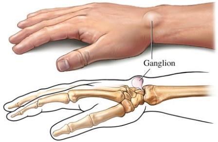 kenőcs a csukló ízületeire a bal kéz könyökízületének fájdalmainak kezelése