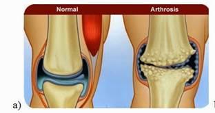 mi a térdízület 3. fokú artrosis