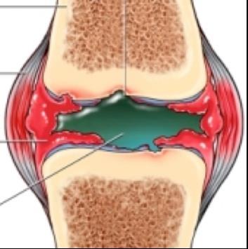 a térdízület artrózisával úszni lehet