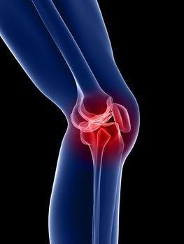 fájdalom a csípőízület ágyékában súlyos fájdalom a csípőízület lábain