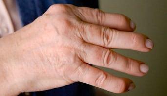 egylépéses artróziskezelés