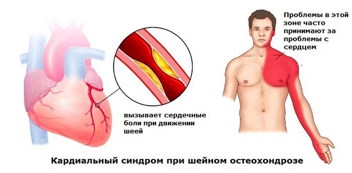 hogyan kezelik a nyaki osteochondrozist, milyen gyógyszereket