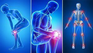 kondroitin készítmény ára nyaki artrózis tünetei