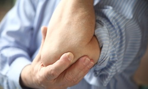 a könyökízületekben a kezek nagyon fájnak