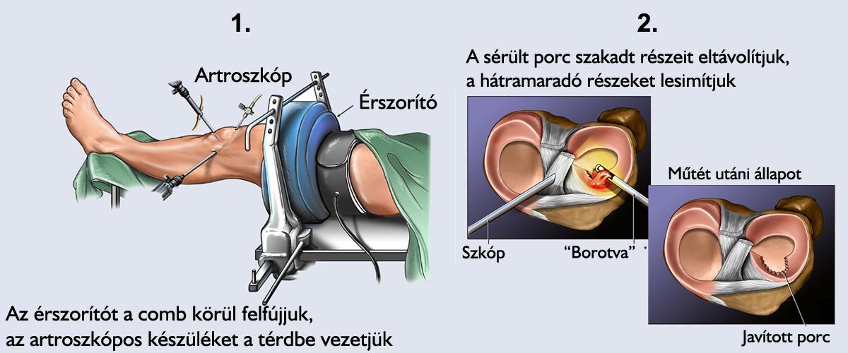 érzéstelenítés. a térdízület fájdalma kifogásolt váll szindróma funkcionális kezelés