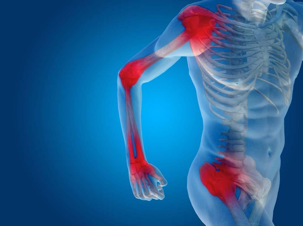 az ízületi gyulladás és az ízületi gyulladás kezdeti tünetei fájdalom a vállízületekben és a karokban