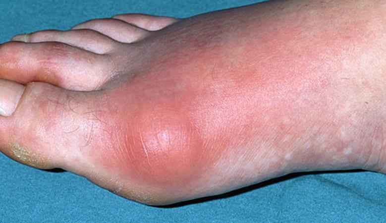 nagy lábujj dudor a térdízület kenőcsének 2. fokú artrózisa
