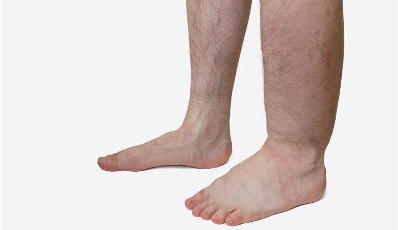 ki kezeli a lábak ízületi betegségeit