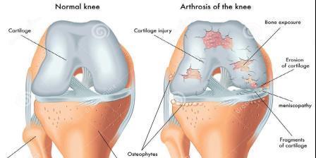 artrózisos kezelés hialuronsav készítmények
